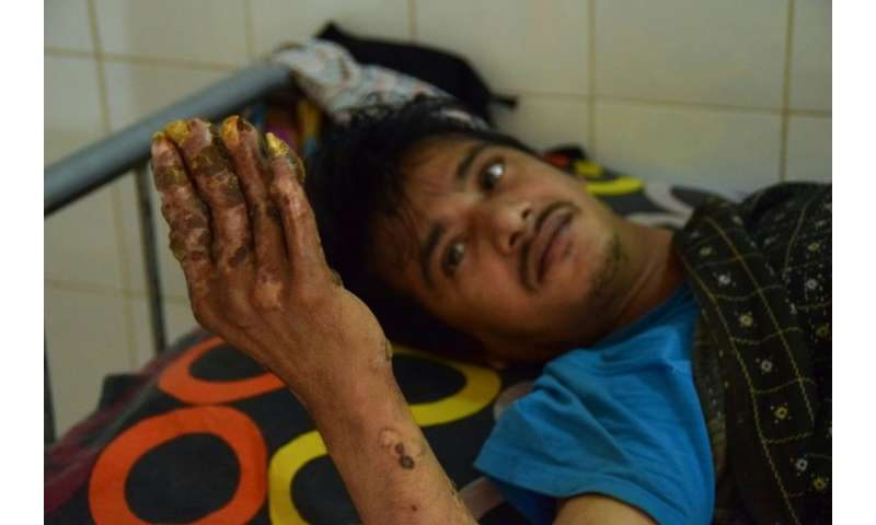 """""""Tree Man"""" Abul Bajandar, who has been unable to work for years and whose young family lives in the hospital, says he"""