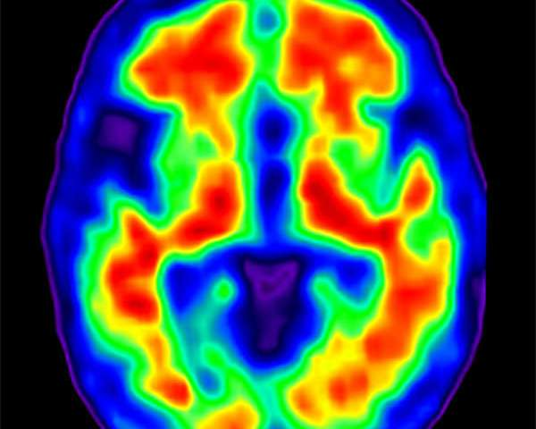 Research offers potential insight into Alzheimer's disease