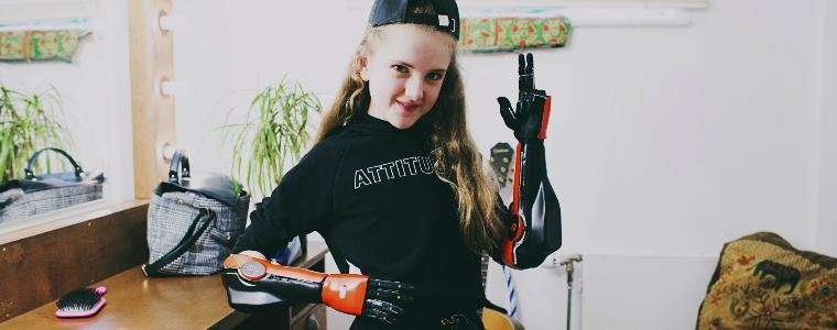 Robotics startup launches first medically approved 3-D printed bionic arms