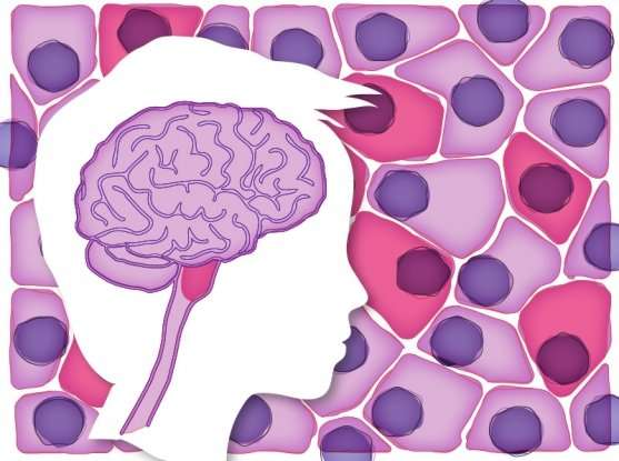 Single-cell study in a childhood brain tumor affirms the importance of context