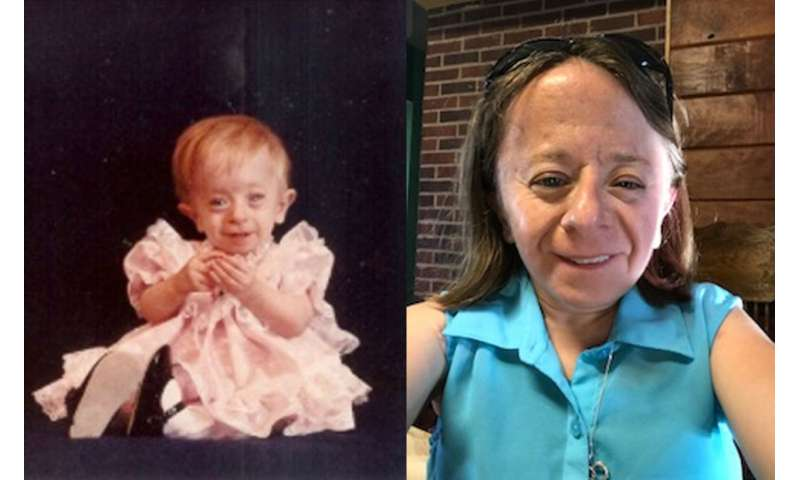 Solving a medical mystery: Cause of rare type of dwarfism discovered