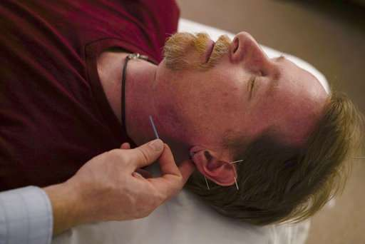 Stuck in an opioids crisis, officials turn to acupuncture