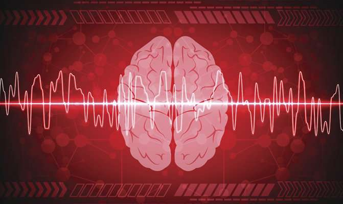Study backs up connection between atrial fibrillation and dementia