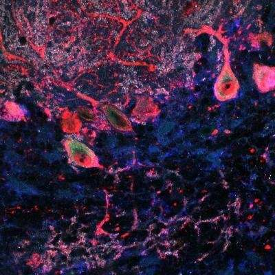 Study of protein 'trafficker' provides insight into autism and other brain disorders