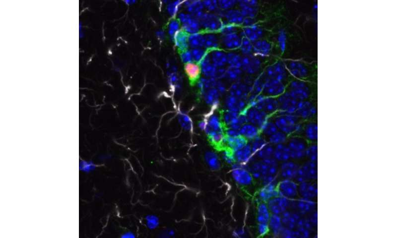 Study points researchers toward new therapies for fragile X syndrome