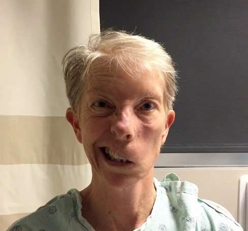 Surgeons transform static 'Mona Lisa' smiles to joyous ones