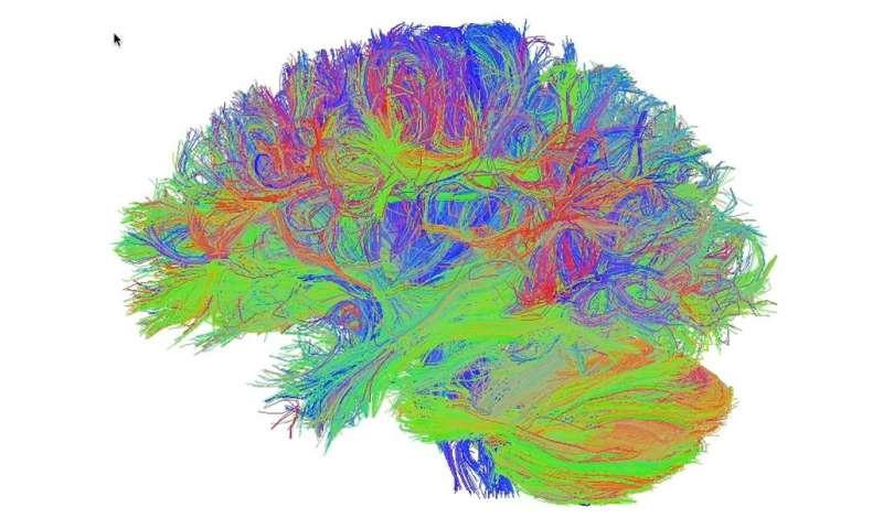 The brain diet