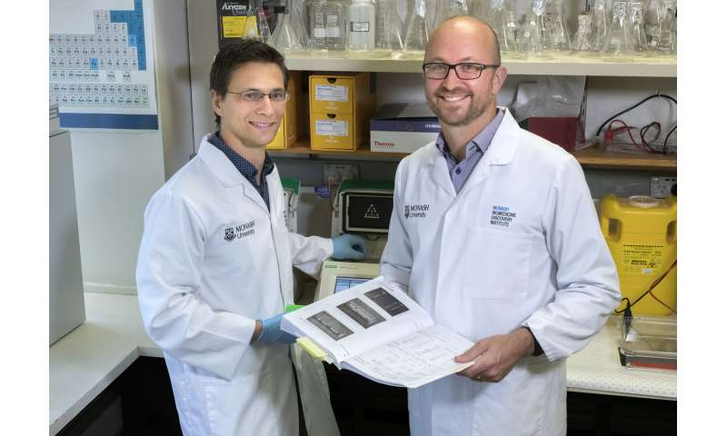 The end of yo-yo dieting? Monash researchers uncover brain switch that controls fat burning