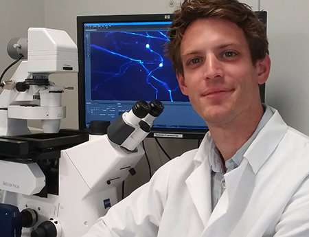 UBC study raises the standard for measuring nerve cell death