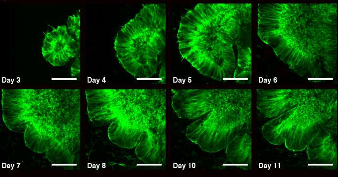 Using organoids to understand how the brain wrinkles