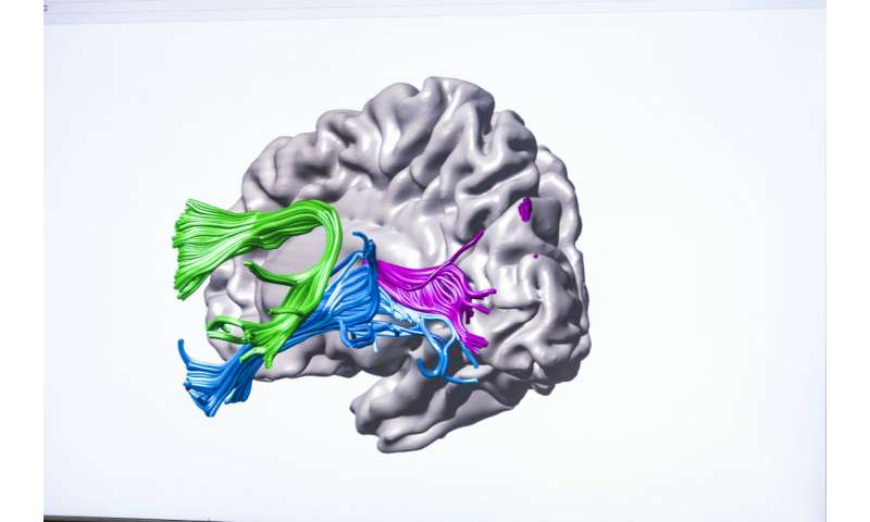 UW study shows how instruction changes brain circuitry in