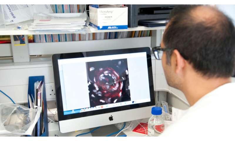 'Virtual tumours' predict success of tumour-heating sound waves