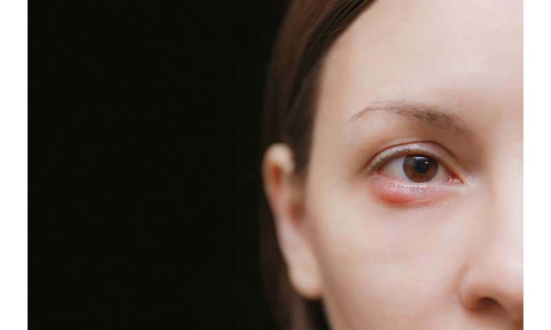 how towards touch on a eye infection beneath the eyelid