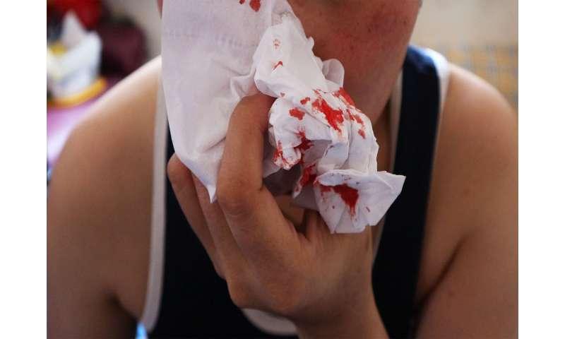 Why do we get nose bleeds?