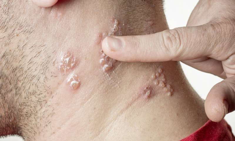 Why getting the new shingles vaccine is a good idea—even if you got the old one