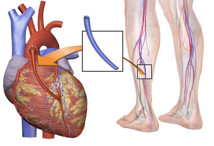 Women and men should receive similar treatment decisions for heart disease, study argues