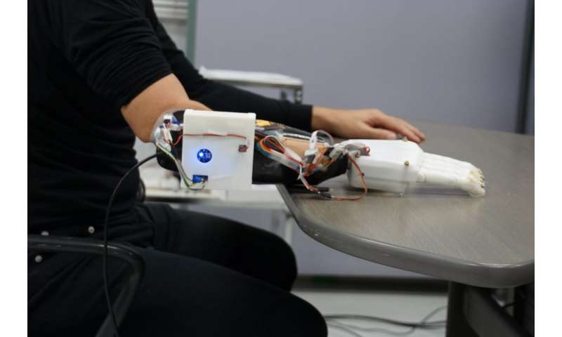 **3-D printed prosthetic hand can guess how people play rock, paper, scissors