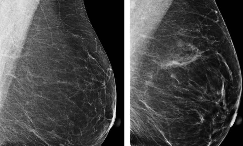 AI improves breast cancer risk prediction