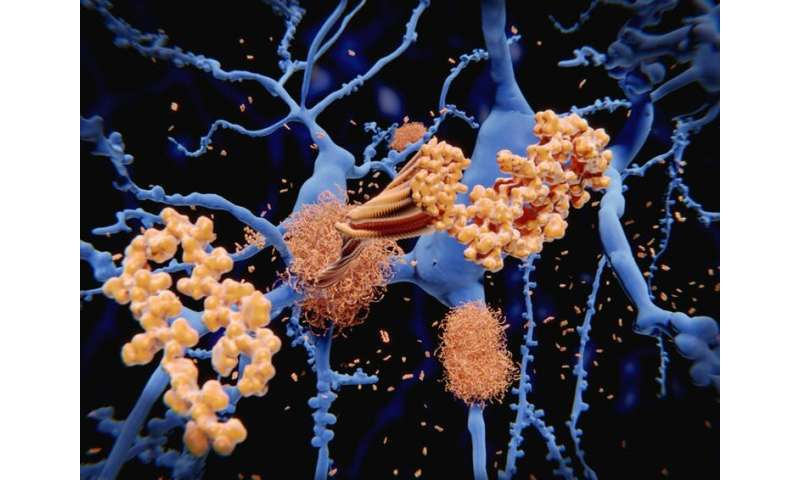 Alzheimer's disease: have we got the cause all wrong?