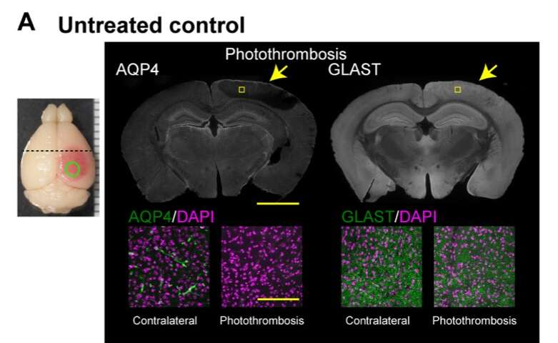 A new treatment for stroke in mice reduces brain damage and promotes motor recovery