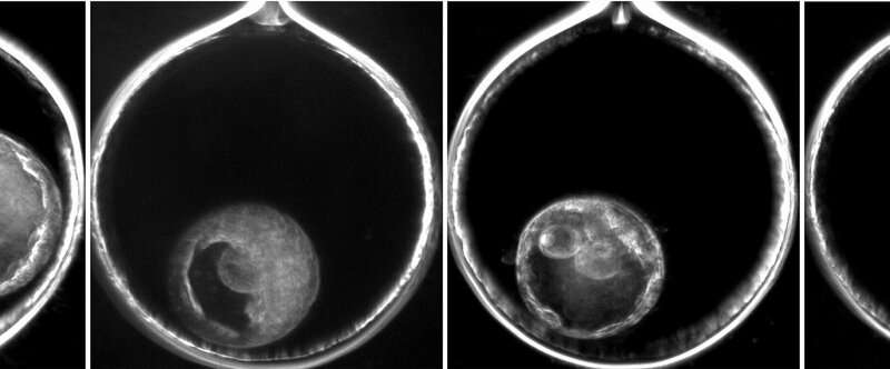 Are mosaic embryos the 'dark horse' of IVF?