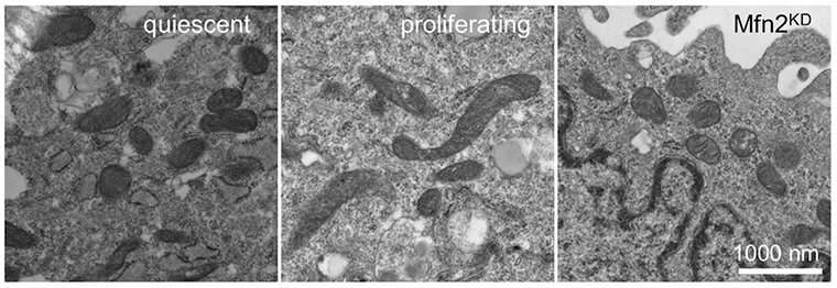 Better together: Mitochondrial fusion supports cell division