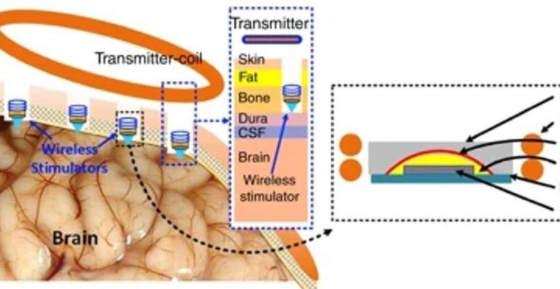 Biotecnología: uso de energía inalámbrica para encender pequeños estimuladores neuronales