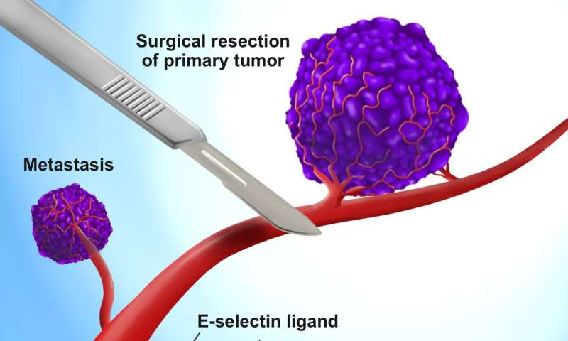Cellular soldiers designed to kill cancer cells that get loose during surgery