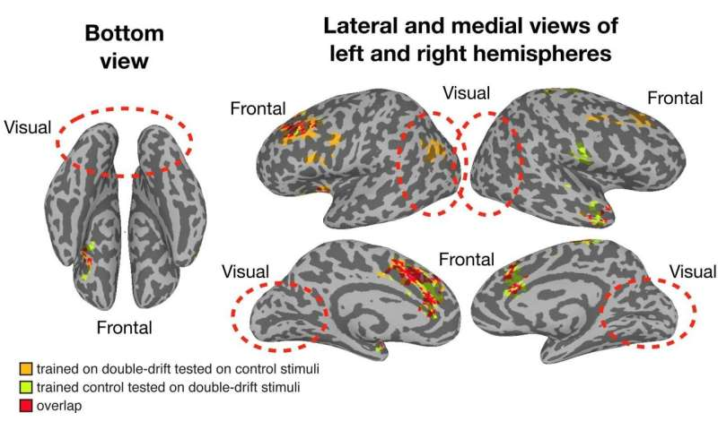 Dartmouth study finds conscious visual perception occurs outside the visual system