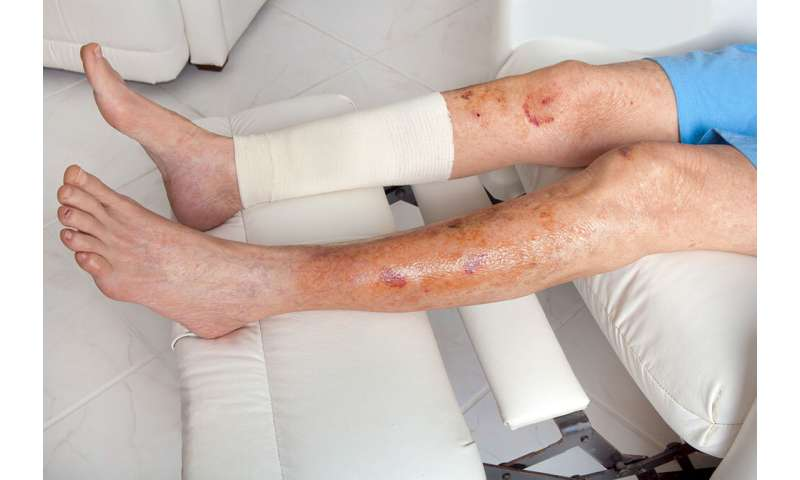 'Early warning' tool for hard-to-heal leg wounds