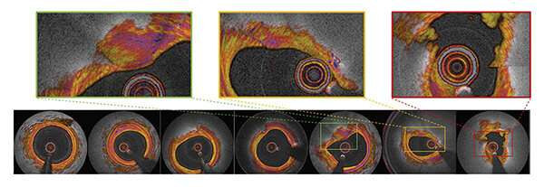 First-in-human imaging study shows improved heart attack prediction