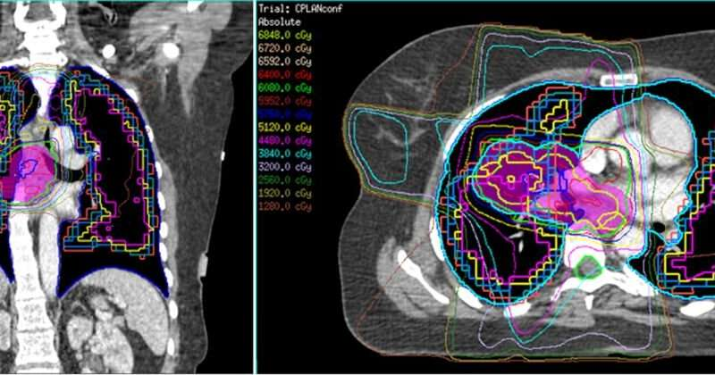 How CT scans continue to play a fundamental role in cancer treatment