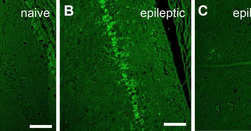 Implantable device curbs seizures and improves cognition in epileptic rats