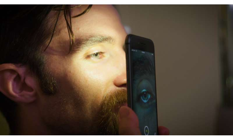 Improved Reflex app from brightlamp provides diagnostic data for concussions in seconds