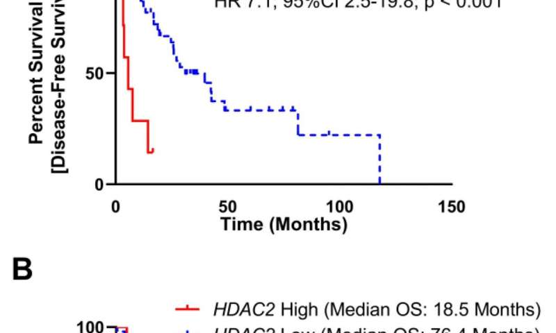 Inhibition of histone deacetylase 2 reduces MDM2 expression and reduces tumor growth in dedifferentiated liposarcoma