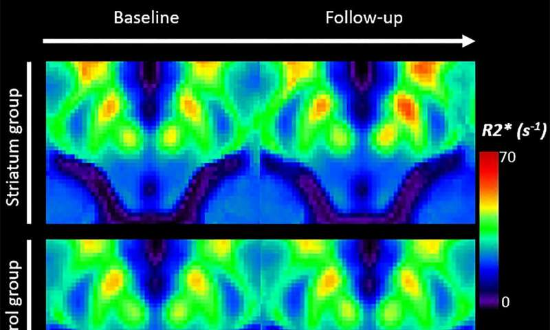Iron measurements with MRI reveal stroke's impact on brain