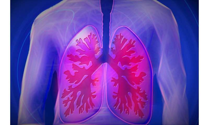 Immunotherapy drug shows potential to cure advanced lung cancer