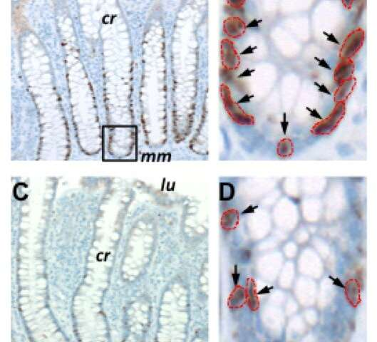 Novel study documents marked slowdown of cell division rates in old age