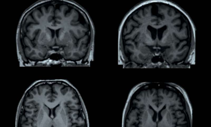 Obesity linked with differences in form and structure of the brain