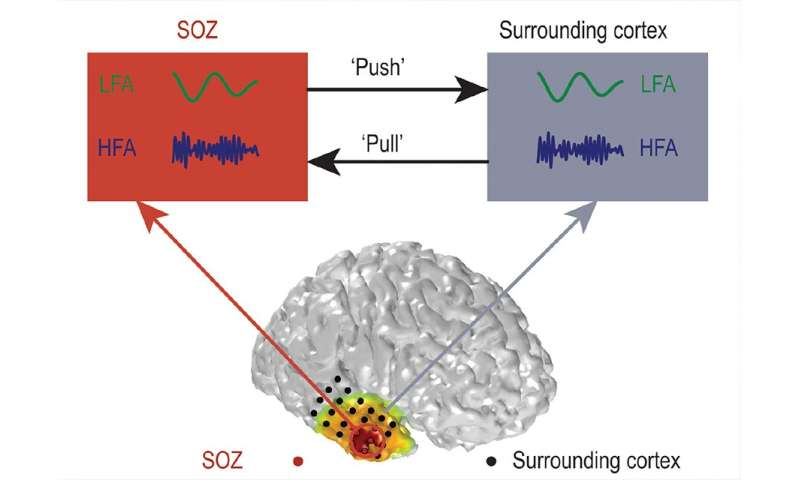 'Push-pull' dynamic in brain network is key to stopping seizures