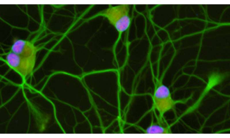 Research reveals potential therapeutic target for ALS