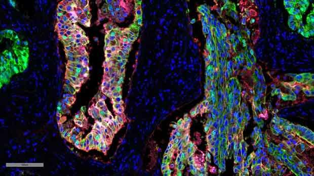 Revealing a potential new marker for aggressive prostate cancer