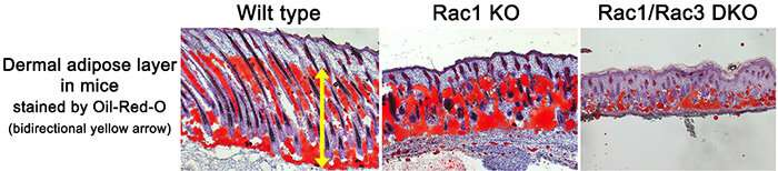 Signals from skin cells control fat cell specialization