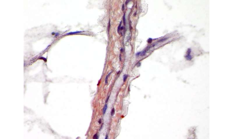 Stem cell signal drives new bone building