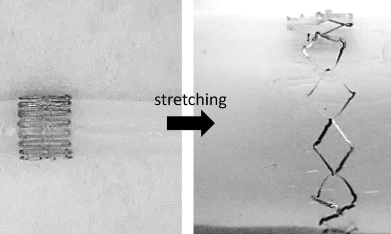 Stretchable wireless sensor could monitor healing of cerebral aneurysms