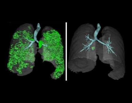 Study illuminates serious but treatable lung autoimmunity in rare disease APECED