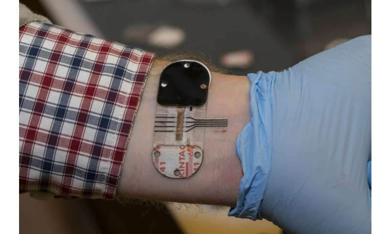 Sweat holds most promise for noninvasive testing