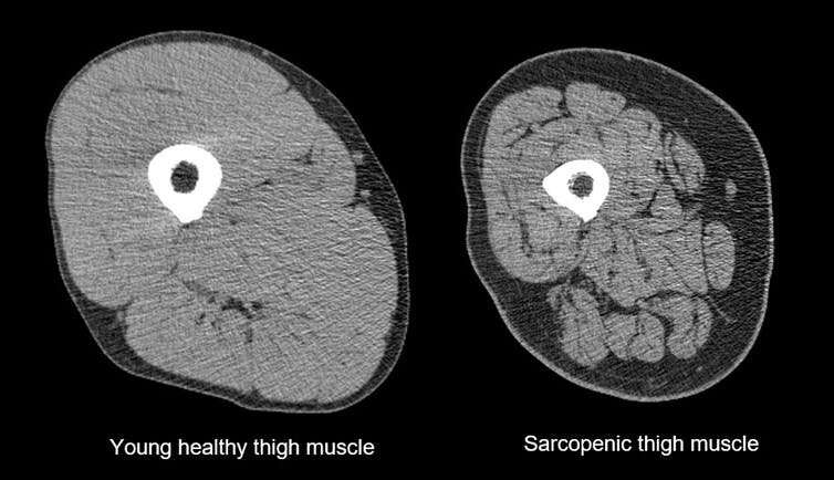 The muscle-wasting condition 'sarcopenia' is now a recognised disease. But we can all protect ourselves