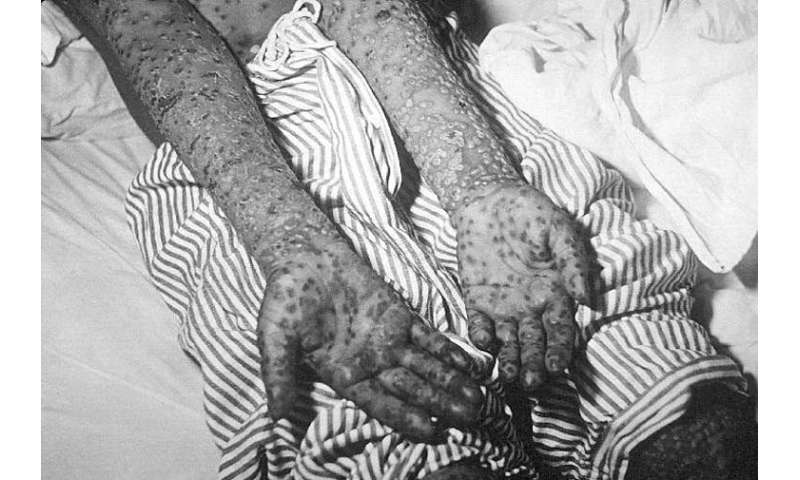 These memoirs show us the role women had in eradicating smallpox from India