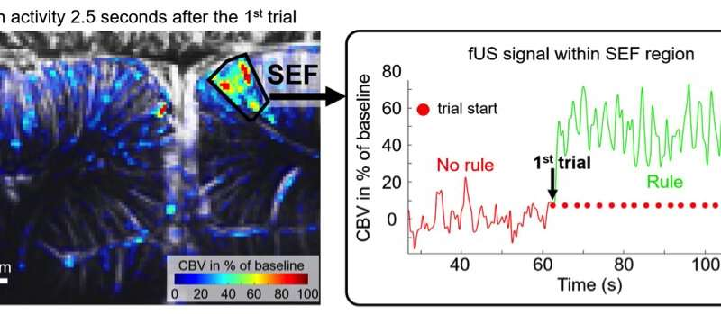 Tracking the flow of thoughts using ultrafast ultrasound